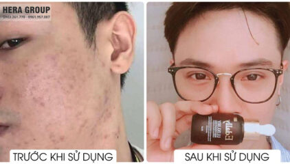 Theo Nguoiduatin.vn: Thải độc tố da hiệu quả tại nhà với Huyết Thanh Tổ Yến